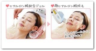 エピレの顔脱毛の方法